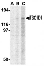 AP05705PU-N - TBC1D1