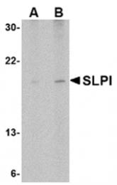 AP05707PU-N - Antileukoproteinase (ALP)