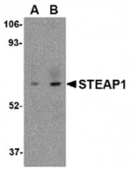 AP05708PU-N - STEAP / STEAP1