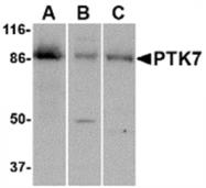 AP05709PU-N - PTK7 / CCK4