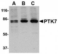 AP05710PU-N - PTK7 / CCK4