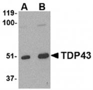AP05713PU-N - TARDBP
