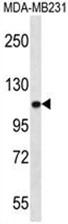 AP50072PU-N - Alpha-actinin-3 / ACTN3