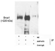 AP05717PU-N - BRCA1 / RNF53