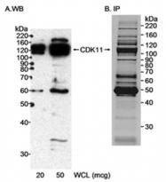 AP05718PU-N - CDK11A / CDC2L2