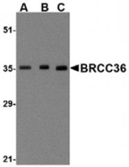 AP05726SU-N - BRCC3