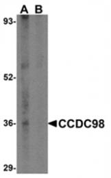 AP05729PU-N - CCDC98