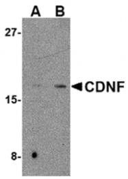 AP05731PU-N - CDNF