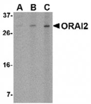 AP05737PU-N - ORAI2