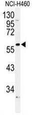 AP50099PU-N - Alpha-1B adrenergic receptor / ADRA1B