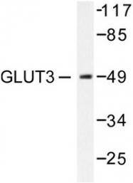 AP06145PU-N - GLUT3 / SLC2A3