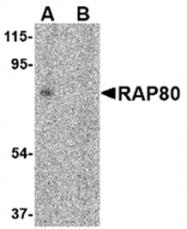 AP05740PU-N - UIMC1 / RAP80
