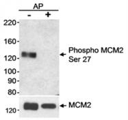 AP05747PU-N - MCM2