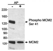 AP05748PU-N - MCM2
