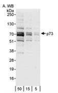 AP05754PU-N - Tumor protein p73 (TP73)