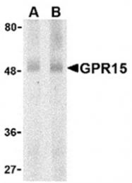 AP05784PU-N - GPR15