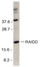 SP1176 - RAIDD