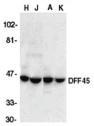 AP05802PU-N - DFFA / ICAD