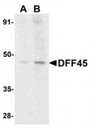 AP05803PU-N - DFFA / ICAD