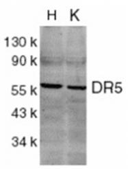 SP1210P - CD262 / TRAILR2