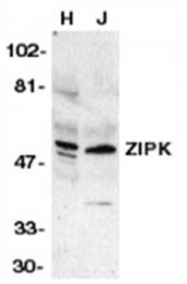 SP1242P - DAPK3 / ZIPK