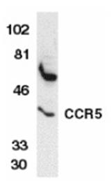 AP05821PU-N - CD195 / CCR5