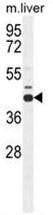 AP50117PU-N - AdoHcyase (AHCY)