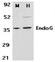 SP1412P - Endonuclease G