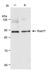 SP2111P - RAD17