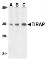 SP2072P - TIRAP