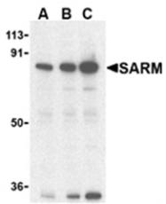 AP05883PU-N - SARM1