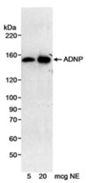 SP2073P - ADNP