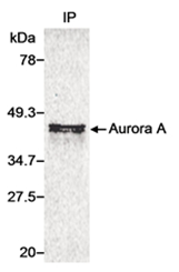 SP2058P - Aurora kinase A