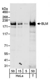 SP2060P - BLM