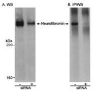SP2067P - Neurofibromin