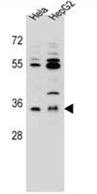 AP50132PU-N - AKR1C3 / DDH3