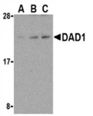 SP2117P - DAD1