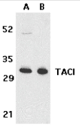 SP2135P - CD267 / TACI