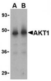 SP2174P - AKT1 / PKB