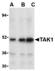 SP2156P - TAK1 / MAP3K7