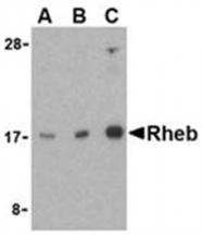 SP2154P - RHEB