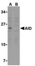 SP2150P - AICDA / AID