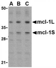 SP2170P - MCL1