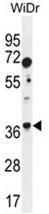 AP50143PU-N - Aldolase C / ALDOC