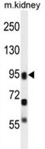 AP50154PU-N - ALOXE3