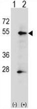 AP50155PU-N - Alkaline phosphatase / PLAP / ALPP