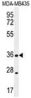 AP54581PU-N - XCR1 / GPR5