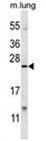 AP54580PU-N - XBP1 / TREB5