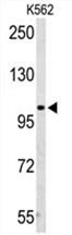 AP50165PU-N - AMP deaminase 2 / AMPD2