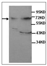 AP31741PU-N - Alpha-fetoprotein / AFP